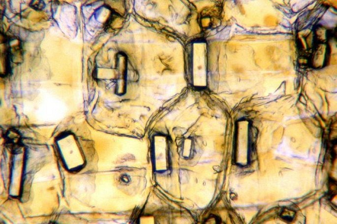 Cells from the outer onion leaf containing crystals of calcium oxalate